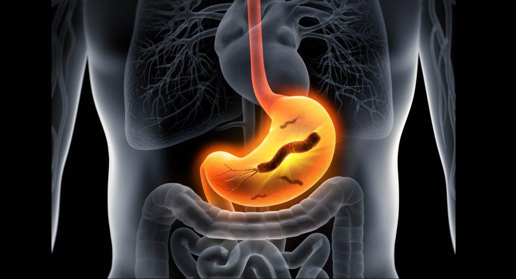 Bei Magenschmerzen hilft oftmals eine Umstellung der Essgewohnheite