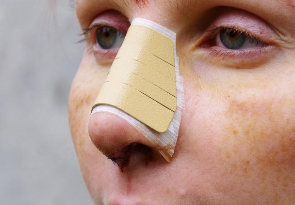 Wenn ein größerer Eingriff an der Nase vorgenommen werden muss, dann wird zur Rhinoplastik gegriffen.(#01)