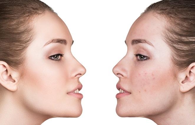 Wie bei anderen Make-up-Themen auch kommt es beim Konturieren ebenfalls auf die richtigen Produkte an. Es gibt eine Vielzahl an tollen Konturierprodukten in den unterschiedlichsten Formen. (#01)
