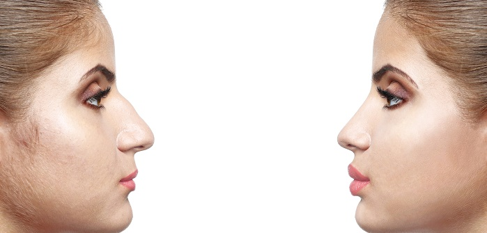 Nase konturieren – klein und schmal geschminkte Nase