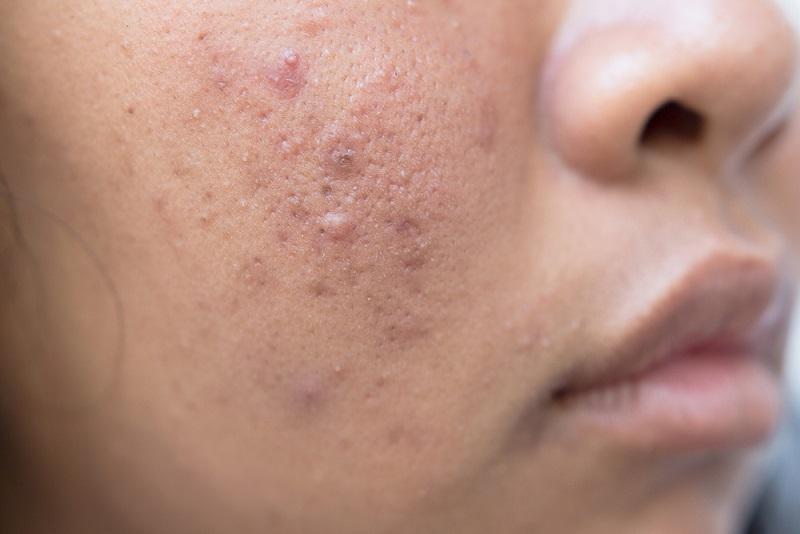 Neben einer hohen Reizbarkeit kommen bei vielen Betroffenen andere Probleme hinzu. Sei es, dass sich im Alter vermehrt Falten bilden oder die Haut zu Unreinheiten und Pickeln neigt. (#02)