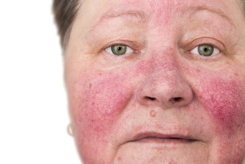 Als erstes sollte man den Ursachen auf die Spur kommen und Allergien durch einen Besuch beim Hautarzt ausschließen. Ein wichtiger Grundsatz bei der Hautpflege sollte sein, eine Creme oder andere Produkte für die Pflege mit möglichst wenigen und reizarmen Inhaltsstoffen zu verwenden, um das natürliche Gleichgewicht der Haut wieder herzustellen und sie nicht durch übermäßige Pflege zu belasten. (#01)