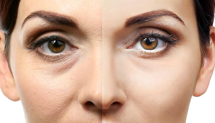 Augen schminken mit Schlupflid kann ein Kampf sein. Mascara verschmiert schnell, Lidschatten sieht man gar nicht. Man kann ein Schlupflid mit dem richtigen Augen-Make-Up aber auch korrigieren. (#03)