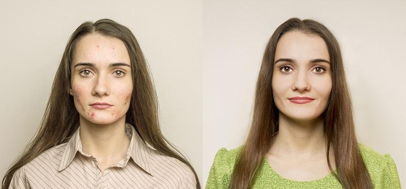 Mönchspfeffer kann den Hormonhaushalt regulieren und wird deswegen gezielt gegen Probleme mit unreiner Haut eingesetzt. (#02)