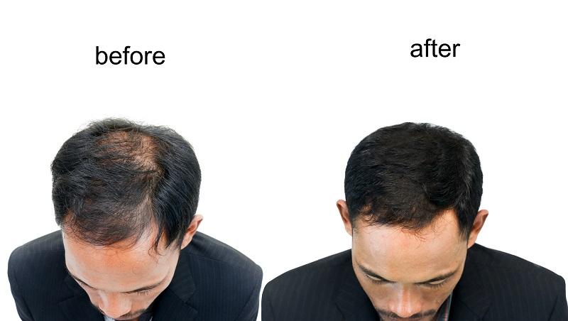 Als Nebenwirkung von Minoxidil wurde ein verstärktes Wachstum von Haaren festgestellt. (#04)