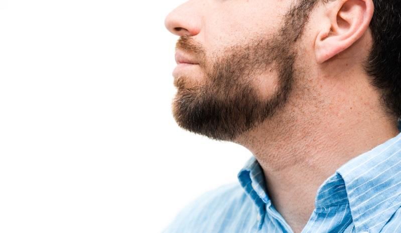 Für die meisten Menschen, bei denen ein kreisrunder Haarverlust aufgetreten ist, beginnt nun ein langer Leidensweg. (#02)
