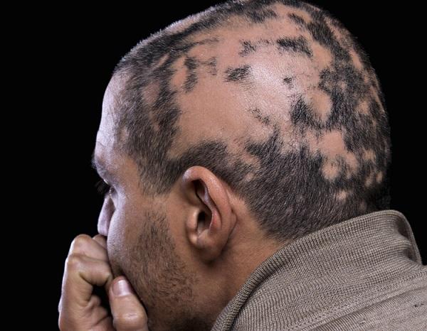 Kreisrunder Haarausfall kann überdies dadurch entstehen, dass sich der Betroffene zu ungesund ernährt. (#03)