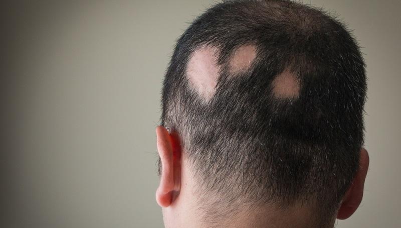 Rund ein bis zwei Prozent der Menschen leiden irgendwann unter dem kreisrunden Haarausfall. (#01)