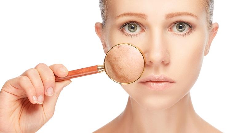 Es ist wissenschaftlich bewiesen, dass die winzigen Schmutzpartikel unsere Haut schneller altern lassen. (#03)