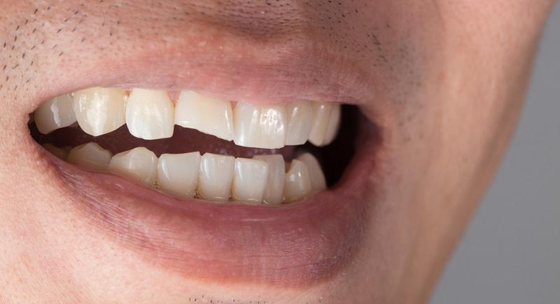 Beim Sport, in der Freizeit aber auch in der Schule oder durch einen unglücklichen Zufall während der Arbeit, es gibt zahlreiche Orte und Begebenheit, an denen es zu einem Zahnbruch kommen kann. (#01)