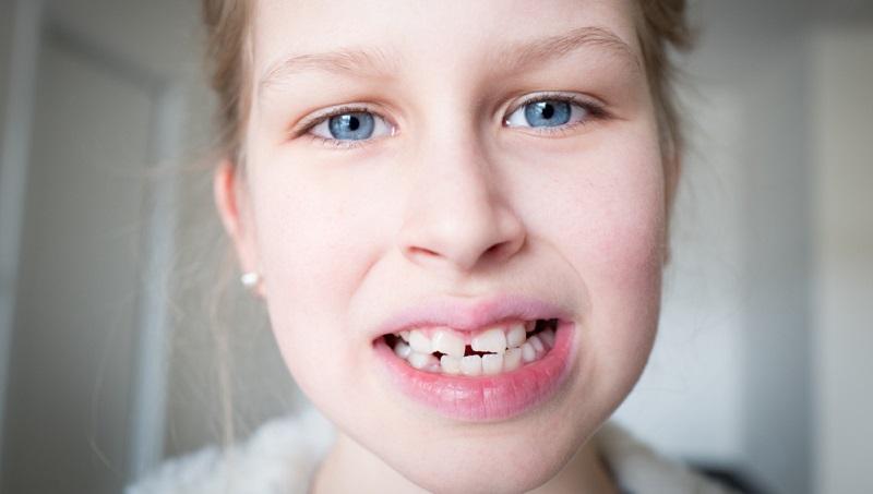 In eher seltenen Fällen, wie etwa bei sehr schweren Sport- oder Autounfällen, wirkt sich ein Bruch im Bereich der Zähne sogar soweit aus, dass das so genannte Dentin und die Pulpa aussetzen können.