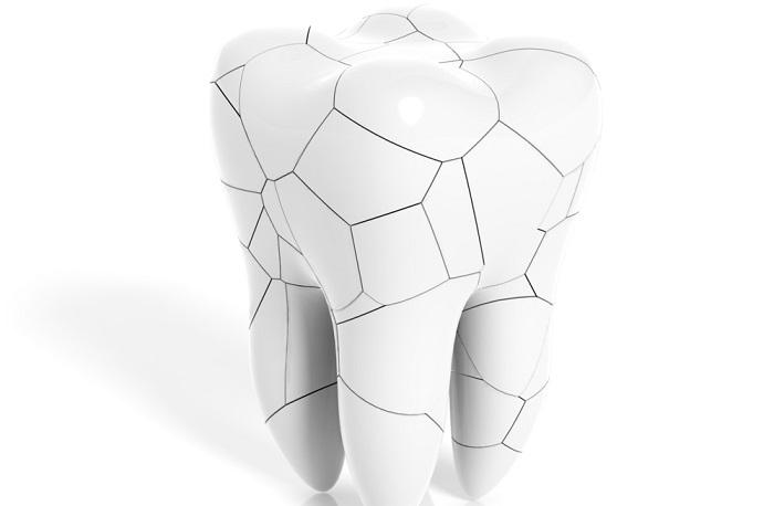 So genannte Schmelzrisse gelten dagegen symptomatisch als unauffällig und sind fachlich keine komplette Zahnfraktur. In den meisten Fällen bedürfen sie auch keiner Therapie.