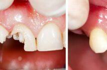 Zahnbruch: Das hilft bei einer Zahnfraktur