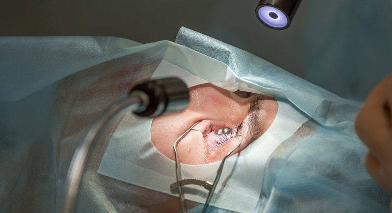 So teuer wie eine Linsenimplantation ist das Augen Lasern nicht, dennoch ist mit enormen Kosten zu rechnen. Pro Auge liegen die Beträge zwischen 1.300 und 2.000 Euro.
